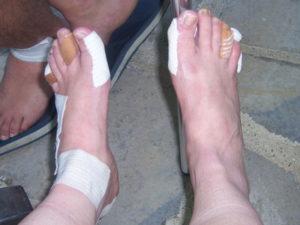 bandaged feet Santiago